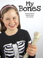 My Bones